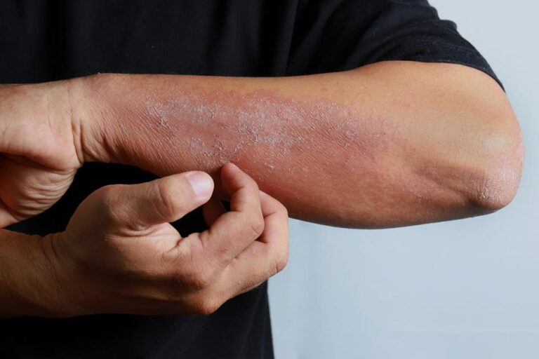 Getting to Know the Causes of Eczema and How to Prevent It – Medicalweeds
