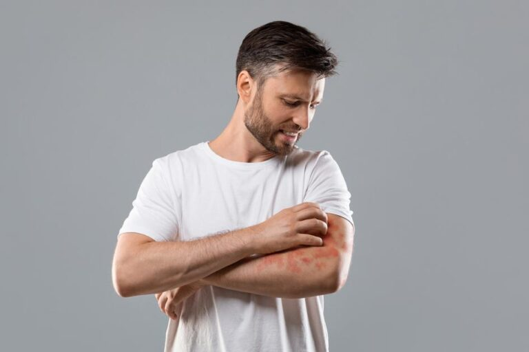Are you protecting your skin against eczema? – Medicalweeds